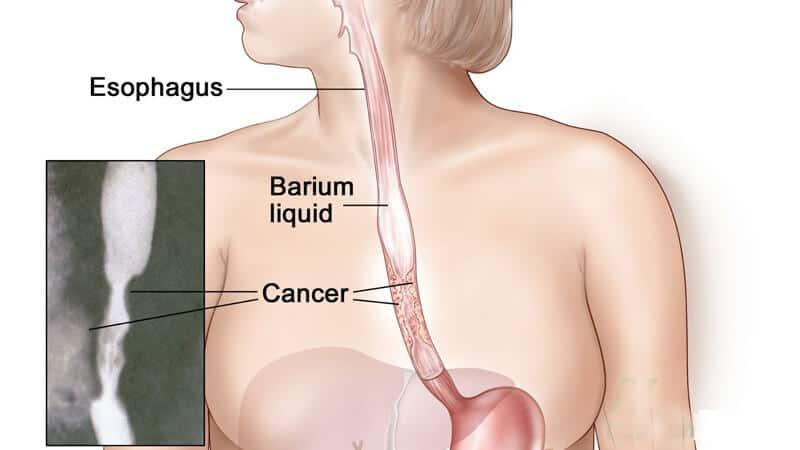 Xét nghiệm tầm soát ung thư thực quản-phát hiện ung thư